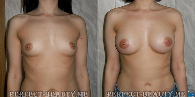 Дома как увеличивать грудь